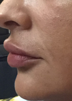 Injectable lip filler