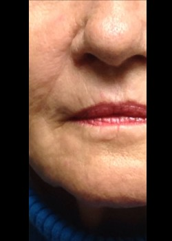 Injectable Fillers 2